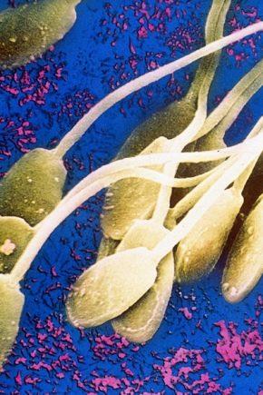 Исследование на морфологию сперматозоидов: нормы и рекомендации по улучшению