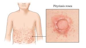 Розовый лишай симптомы