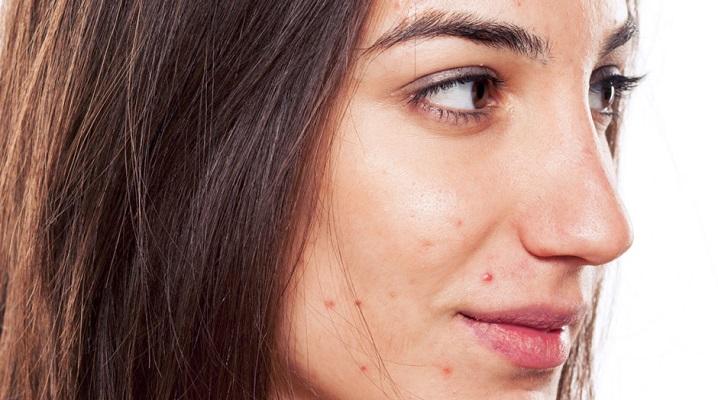Причины угрей на лице