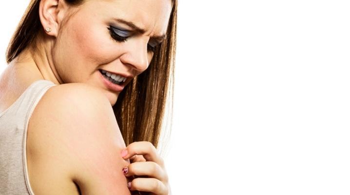 Причины и лечение атопического дерматита у взрослых