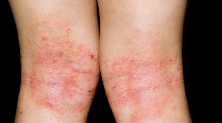 Дифференциальная диагностика атопического дерматита