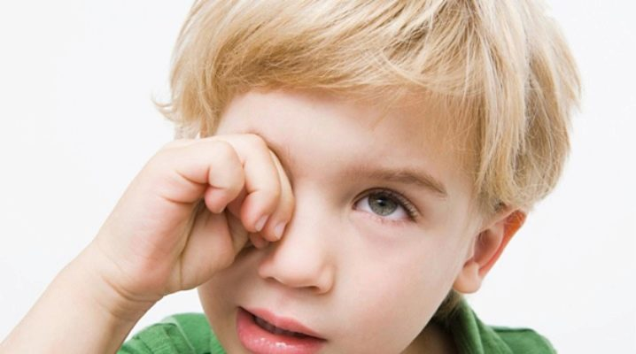 Блефарит у детей (31 фото): лечение чешуйчатого блефарита, чем ...