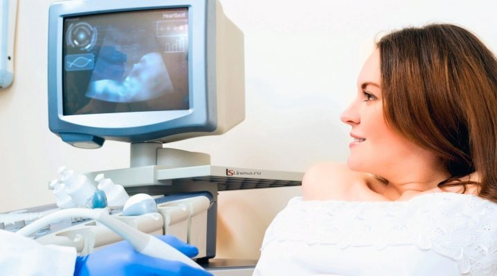 Проведение УЗИ на 33 неделе беременности