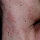 Лечение розового лишая Жибера у взрослых людей