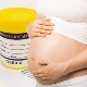 Анализ мочи при беременности: норма и патология