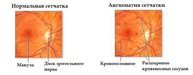 Ангиопатия сетчатки глаза у ребенка: что это такое, флебопатия ...