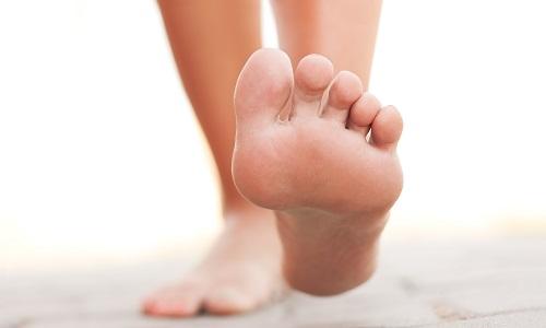 Симптомы плоскостопия у подростков