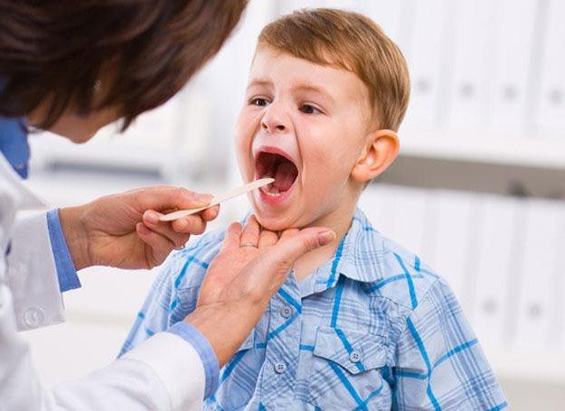 Стрептококковая инфекция горла у детей Горло Лечение детей