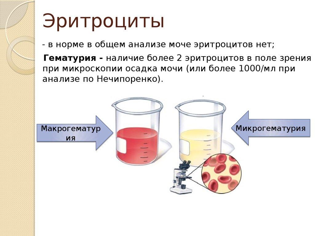 Как сдавать анализ мочи при болезни почек справка для надомного обученияметро Московские ворота