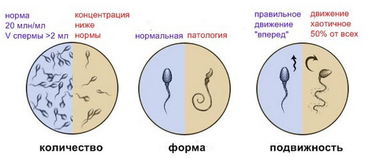 Из за чего бывают патогенные сперматозоиды