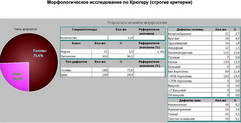 karta-sayta-spermi-seks-s-ahuevayushey-russkoy-telkoy