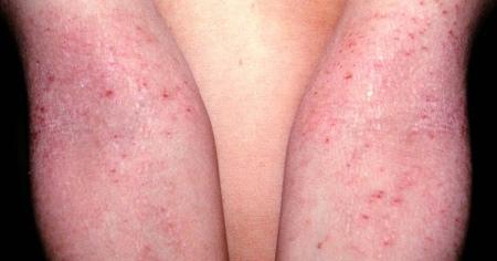 атопический дерматит годен к военной службе