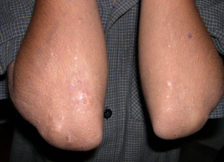Атопический дерматит эритематозная форма