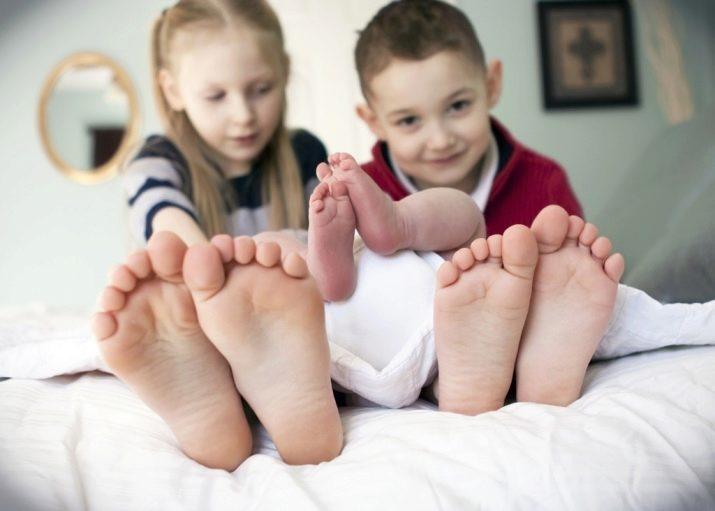 Признаки плоскостопия у подростков